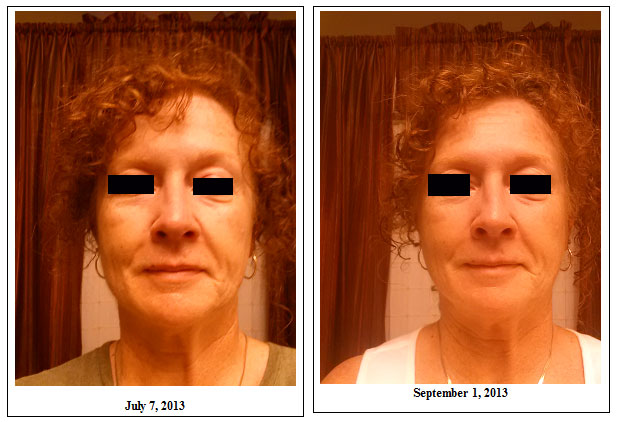 sharon full face before and after photos